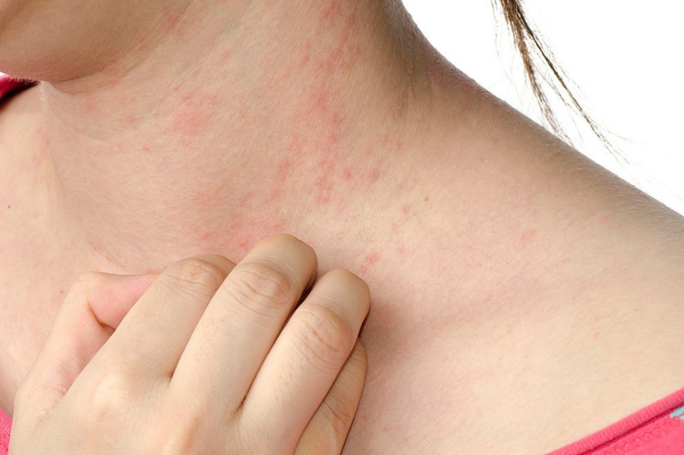 5 Common Reasons Why Your Skin Is Red and Itchy